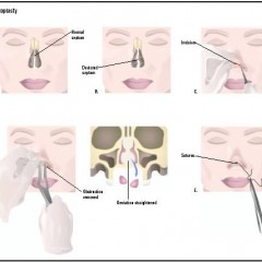 The Different Surgical Treatments for a Deviated Septum