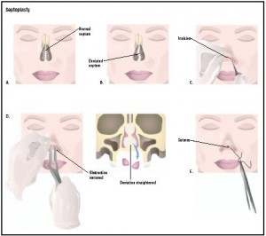 Deviated Septum- Septoplasty Procedure