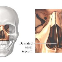 Symptoms, Diagnosis of a Deviated Septum