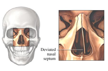 DeviatedSeptum at an skeleton level