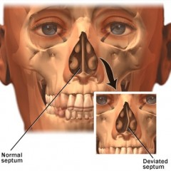 What is a Deviated Septum?