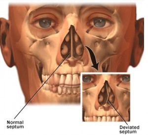 Difference Between a Normal and Deviated Septum