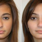 Rhinoplasty and a Deviated Septum