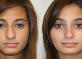 rhinoplasty for a deviated septum