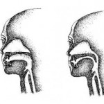 Disadvantages of Breathing from Your Mouth & a Deviated Nasal Septum