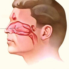 How to Find out If your Congested Nose is due to a Deviated Septum or Enlarged Turbinates