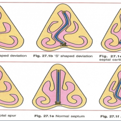 Classification & Types of Deviated Septums
