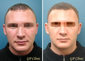 Before & After a Septorhinoplasty