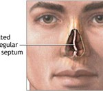 minor deviated septum