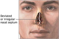 Minor Deviated Septum Treatment