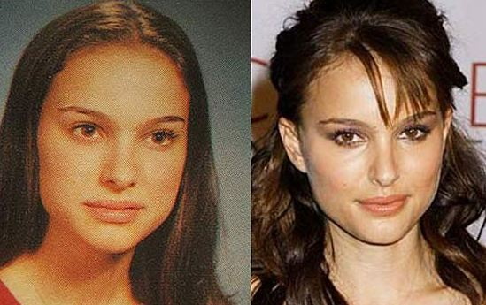 Natalie Portman Nose Job Before After Deviated Septum