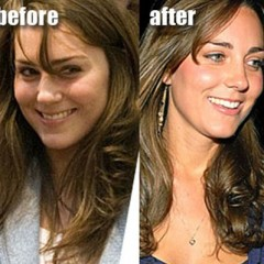 Kate Middleton Nose Job – Before & After