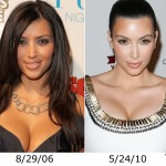 Kim Kardashian Nose Job – True or Not