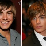 Zac Efron Nose Job – True or Not