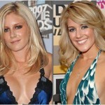 Heidi Montag Nose Job – Before and After