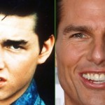 Tom Cruise Nose Job