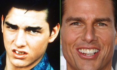 Tom Cruise Nose Job - Deviated Septum Information & Advice  Tom