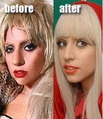 Lady Gaga Before Nose Job | Lady Gaga Nose Job