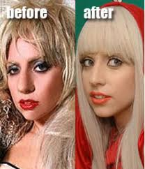 Lady Gaga Before Nose Job | Lady Gaga Nose Job