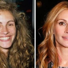 Julia Roberts Nose Job – Before & After