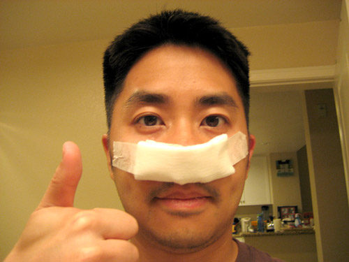 Deviated Septum Surgery Cost