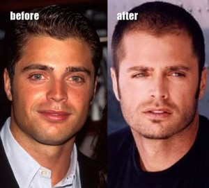 Celebrity Nose Jobs- The David Charvet Nose Job