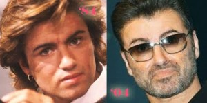 Celebrity Nose Jobs- The George Michael Nose Job
