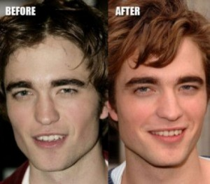Celebrity nose jobs - The Robert Pattinson Nose Job