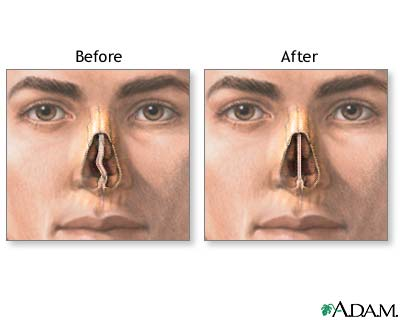 Deviated Septum Surgery Information and Recovery Time