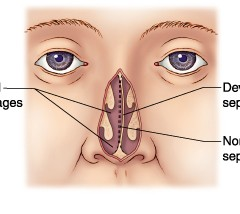 How Do You Know If You Have a Deviated Septum?