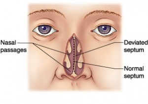 How Do You Know If You Have a Deviated Septum.jpg