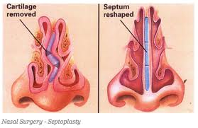 Side Effects of Deviated Septum Surgery