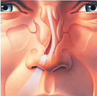 Deviated Septum and Ear Infections