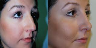 Rhinoplasty: A Surgery To Cure Deviated Septum