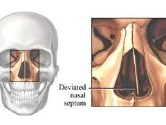 Septoplasty An Accurate Procedure To Correct Deviated Septum