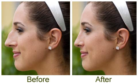 What is Closed Rhinoplasty?