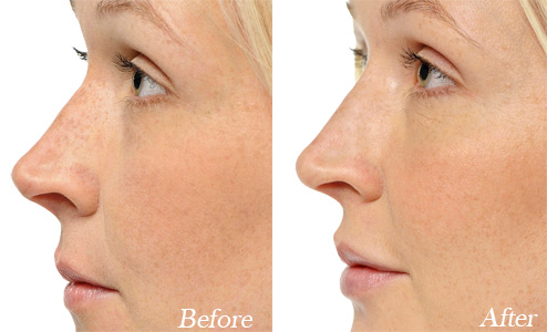 Hyaluronic Acid-Based Fillers for Non-Surgical Rhinoplasty