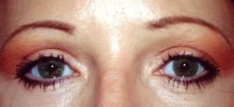 Laser Blepharoplasty - Puffey Eye Bags - Deviated Septum
