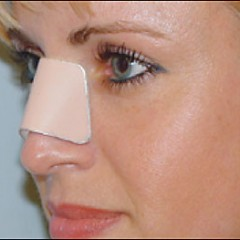 Post Rhinoplasty Discomforts