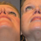 External Nasal Valve Collapse and Functional Rhinoplasty