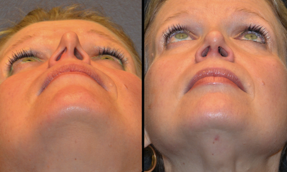 External Nasal Valve Collapse and Functional Rhinoplasty - Deviated ...