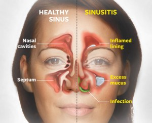 Acute Sinusitis.jpg