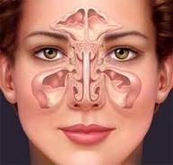 Symptoms of Fungal Sinusitis