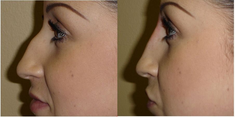 How To Get Insurance Cover For Rhinoplasty Deviated Septum Information Advice