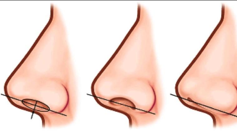 Non Surgical Nose Job Risks