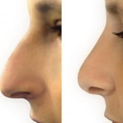 Cosmetic and Health Benefits of Rhinoplasty