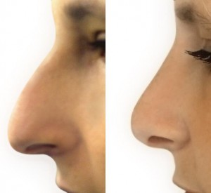 Nose Job, Rhinoplasty Surgery