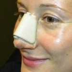 Rhinoplasty – Postoperative Advice and Instructions
