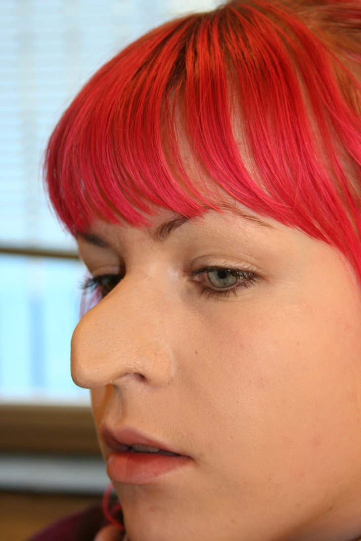 Do I need a Rhinoplasty Surgery or a Nose Job? - Deviated ...