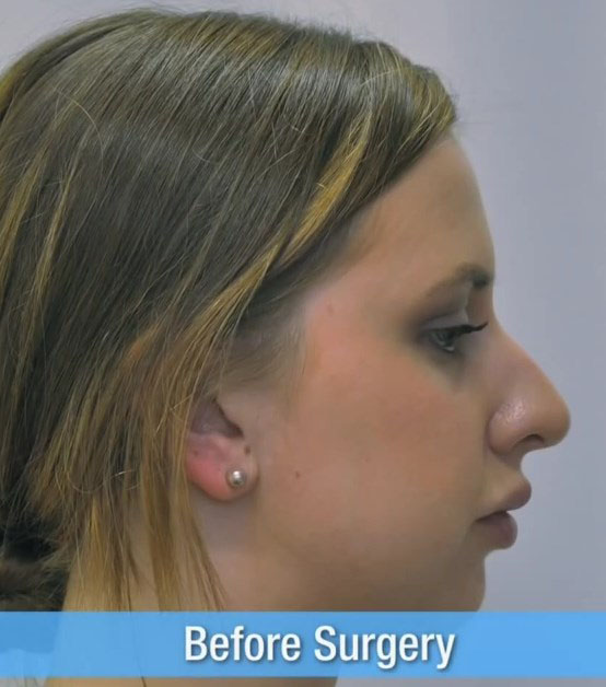 Rhinoplasty Nose Job Before Surgery 12